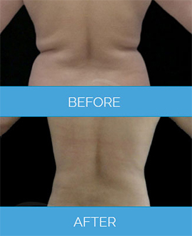Before After Vaser Liposuction Results Uk