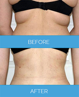 Before After Vaser Liposuction Results Uk